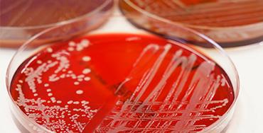 Legionella Risk Assessments & Control